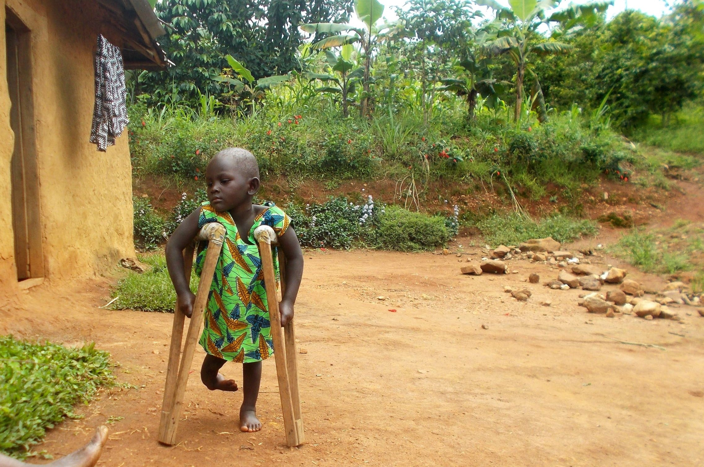 A girl with disabilities in Rukungiri using wooden walking sticks